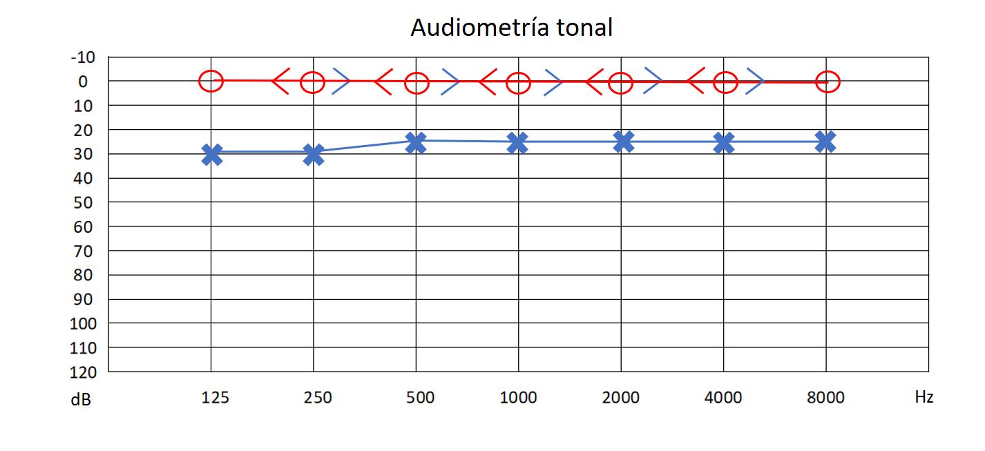 Audiograma tonala.